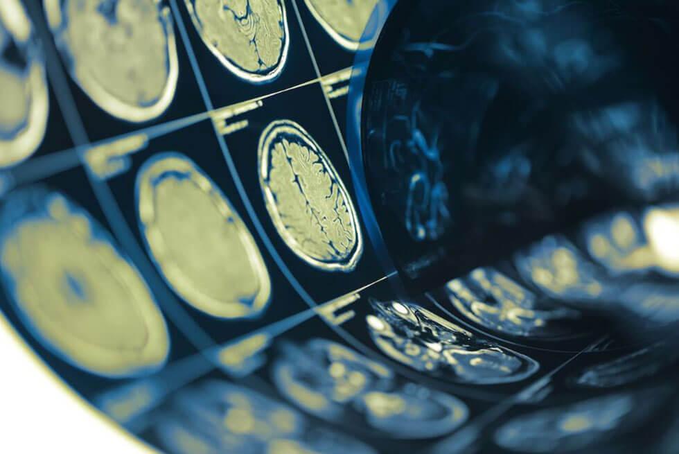Gros plan sur des radiographies de cerveaux